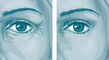 Pourquoi le matin les oedèmes sur les yeux